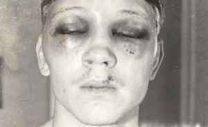 Billy Collins Jr. got permanent blurred vision in 1983 fight against Luis Resto.