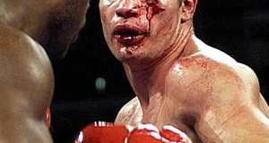 Worst boxing injuries of All Time